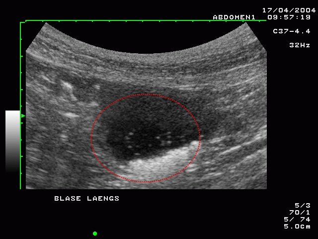 Blasensteine im Ultraschall